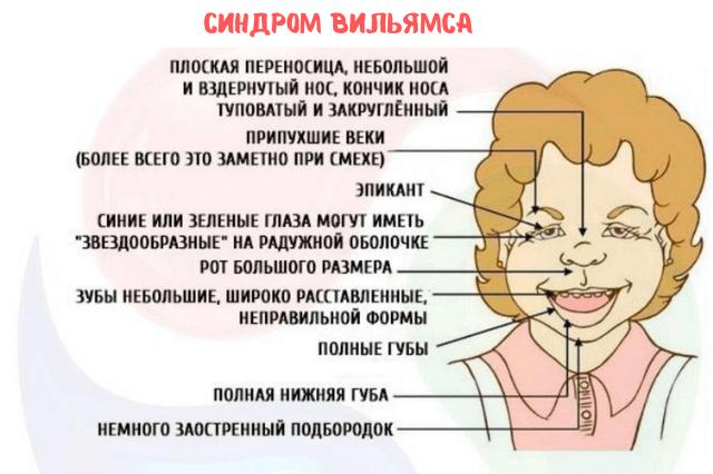 Характерные черты лица